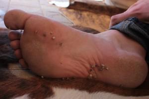 Tribulus_terrestris_nutlets_in_foot,_Marfa,_Texas